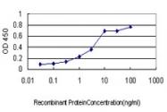 H00030818-M01 - Calsenilin