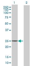 H00050808-B01 - Adenylate kinase 3 (AK3)