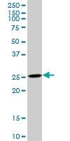 H00050808-B01P - Adenylate kinase 3 (AK3)