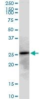H00050808-B01P - Adenylate kinase 3 / AK3