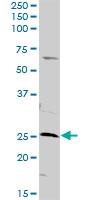 H00050808-D01 - Adenylate kinase 3 / AK3