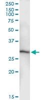 H00050808-D01 - Adenylate kinase 3 (AK3)