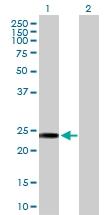 H00050808-D01P - Adenylate kinase 3 / AK3