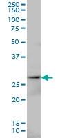 H00050808-M01 - Adenylate kinase 3 / AK3