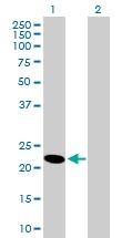 H00050865-B01P - Heme-binding protein 1 / HEBP1