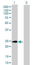 H00050865-B02P - Heme-binding protein 1 / HEBP1