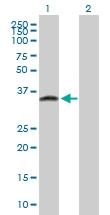 H00051184-B01P - GPN3 / ATPBD1C