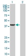 H00051268-B01 - Sarcosine oxidase