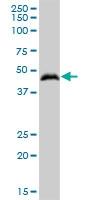 H00051280-B01P - Golgi membrane protein 1 / GOLM1
