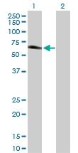 H00051280-D01P - Golgi membrane protein 1 / GOLM1