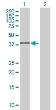 H00051292-B01 - GMP reductase 2 / GMPR2