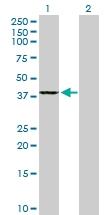 H00051292-B01P - GMP reductase 2 / GMPR2