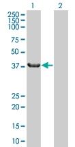 H00051375-B01 - Sorting nexin-7 (SNX7)