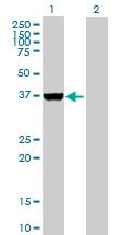 H00051422-B01P - AMPK gamma-2 chain / PRKAG2