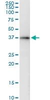 H00051422-D01 - AMPK gamma-2 chain / PRKAG2