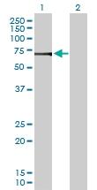 H00051606-D01P - ATP6V1H