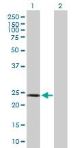 H00053340-B01P - Sperm protein 17 (SP17)