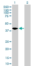 H00053407-B01P - Syntaxin 18 / STX18
