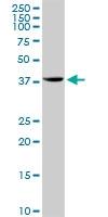 H00053407-D01P - Syntaxin 18 / STX18