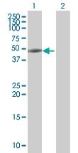 H00054474-B01 - Cytokeratin 20