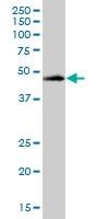 H00054474-B01P - Cytokeratin 20