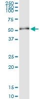 H00054474-D01 - Cytokeratin 20