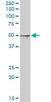 H00054474-D01P - Cytokeratin 20