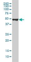 H00054474-M01 - Cytokeratin 20