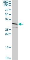 H00054707-B03P - GPN2 / ATPBD1B