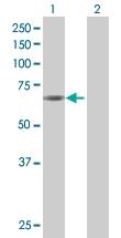 H00054986-B01 - Unc-51-like kinase 4 (ULK4)