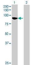 H00055175-B01 - Kelch-like protein 11