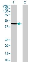 H00055224-B01 - Ethanolamine kinase 2
