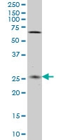 H00055330-M02 - Cappuccino homolog