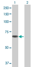 H00055349-B01 - Choline dehydrogenase