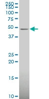 H00055500-A01 - Ethanolamine kinase 1