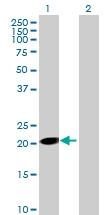 H00055500-B02 - Ethanolamine kinase 1