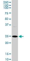 H00055686-D01 - Melanoregulin