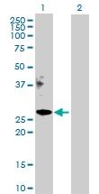 H00055937-D01P - Apolipoprotein M / Apo M