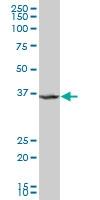H00057019-A01 - Anamorsin