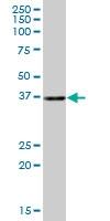 H00057019-B01 - Anamorsin