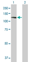 H00057231-B01 - Sorting nexin-14 (SNX14)
