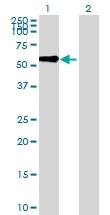 H00057563-B01 - Kelch-like protein 8