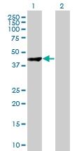 H00057571-B01 - CARNS1 / ATPGD1