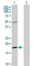 H00059067-D01P - Interleukin-21 / IL21