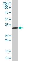 H00063973-M10 - Neurogenin 2