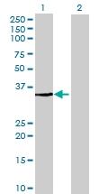 H00064122-B01 - Fructosamine-3-kinase