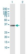 H00064122-D01 - Fructosamine-3-kinase