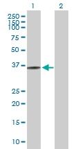 H00064122-D01P - Fructosamine-3-kinase