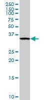 H00064122-M01 - Fructosamine-3-kinase