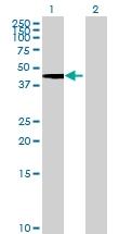 H00064174-B01 - Dipeptidase 2